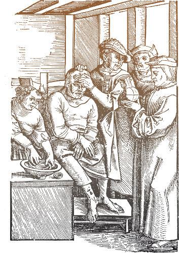 A Peste Negra afetou a Europa ao longo do século XIV e resultou na morte de 1/3 da população europeia.