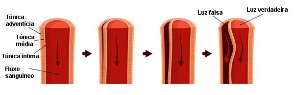 Observe no esquema a formação de um canal na parede da artéria.