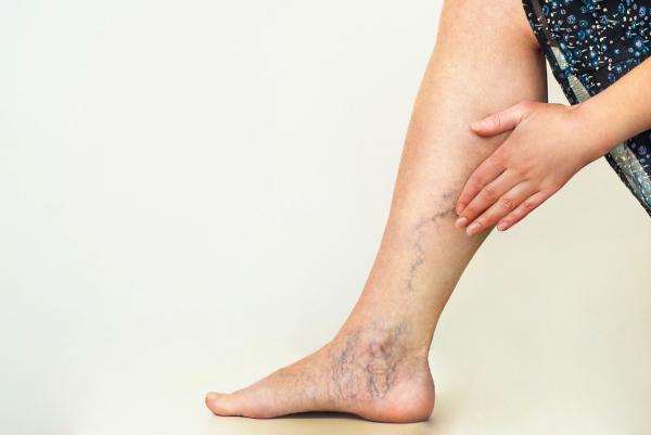 As varizes são veias tortuosas e dilatadas que ocorrem, com maior frequência, nos membros inferiores.