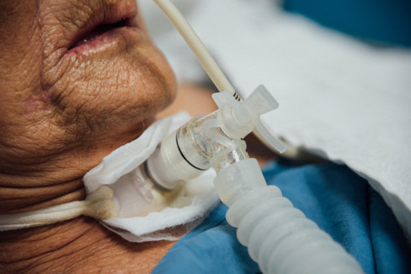 A traqueostomia consiste na abertura da traqueia, comunicando-a com o meio externo.