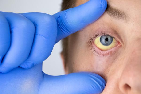 Homem mostrando seu olho amarelado devido à icterícia.