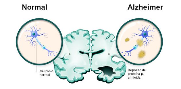 ilustração de cérebro com alzheimer