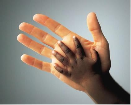 Faz algum sentido julgar uma pessoa pela quantidade de melanina que ela produz?