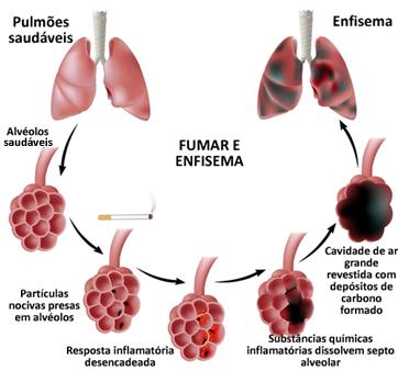 Enfisema causado por hábito de fumar