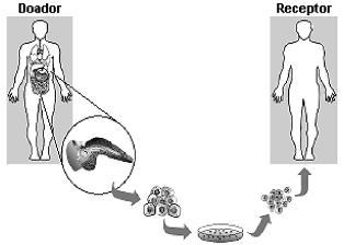 Transplante de células no tratamento para diabetes melito