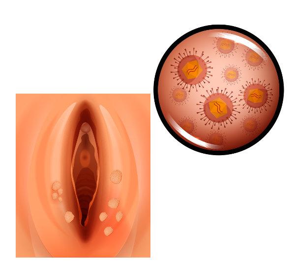 O HPV pode levar ao desenvolvimento de verrugas genitais que podem ser vistas a olho nu e de verrugas microscópicas.
