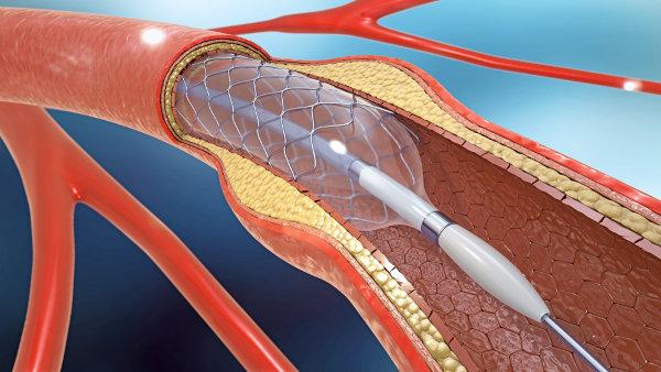 A colocação de stent ajuda a restabelecer o fluxo sanguíneo nas artérias com placas de aterosclerose.
